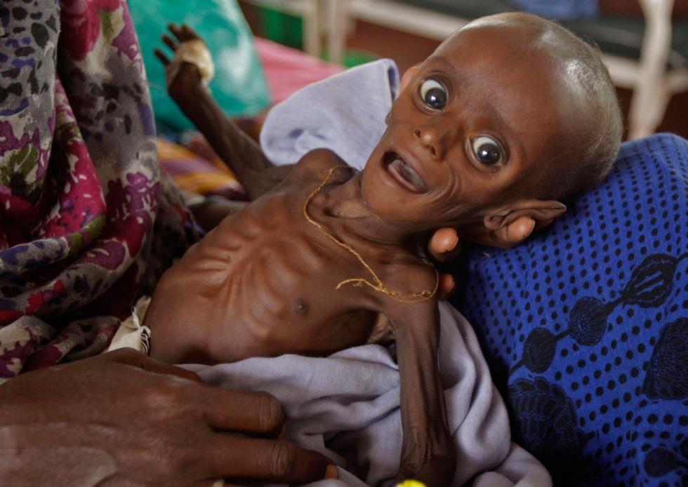 La famine en Afrique